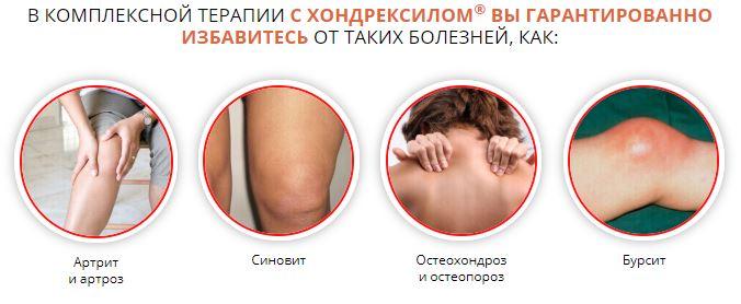Диклофенак при воспалении суставов